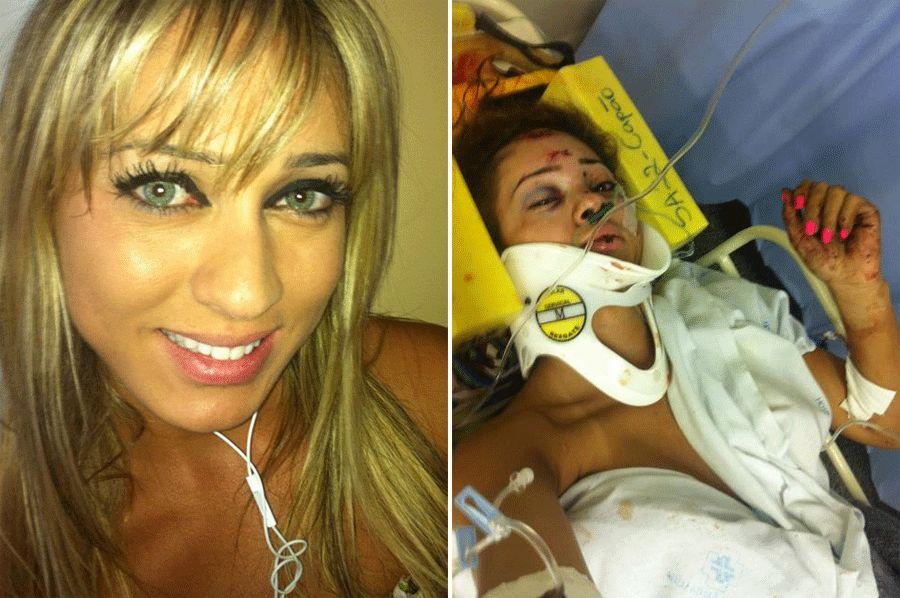 Cris Lopes divulga foto logo após acidente