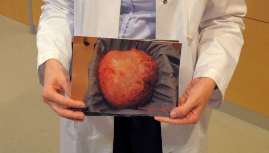 A paciente perdeu um total de 40 kg durante a operação / MATTHIAS HIEKEL / DPA / AFP