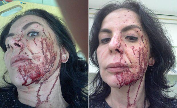 Andréa Guimarães ficou com o rosto cheio de hematomas