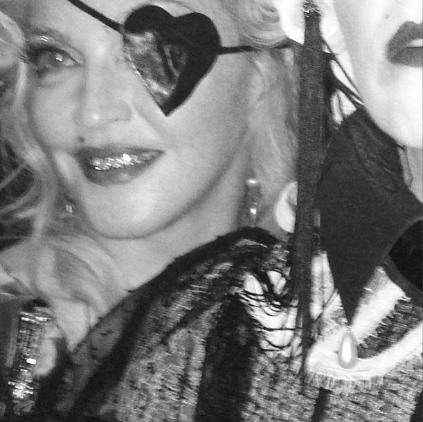 Cantora usou um tapa-olho em formato de coração