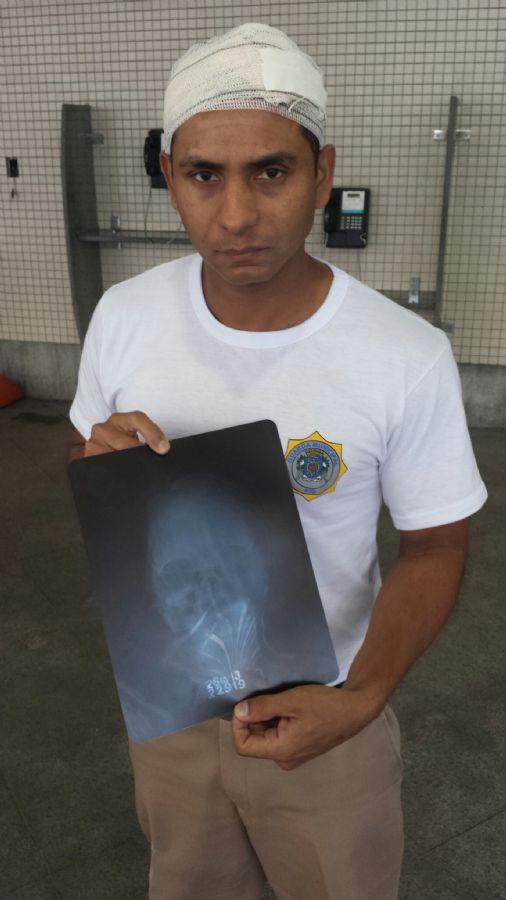 Guarda agredido mostra radiografia / Divulgação Guarda Municipal RJ