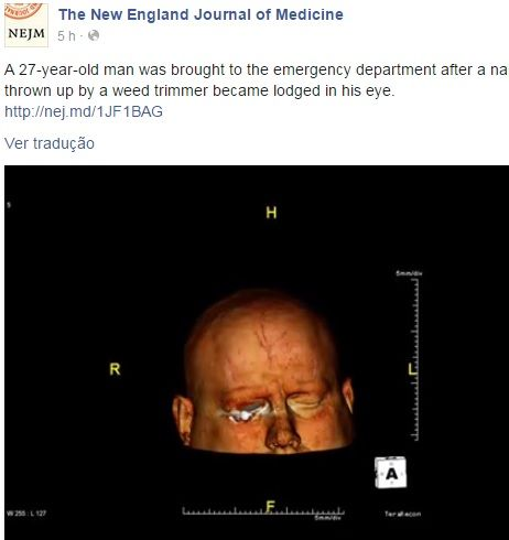 Paisagista chega à emergência com prego na cabeça / Reprodução/Facebbok/The New England Journal of Medicine