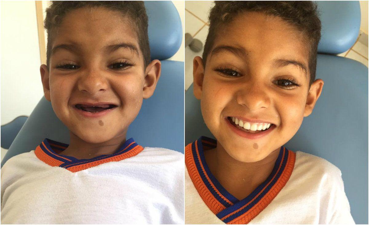 Menino de seis anos se emocionou ao ver o resultado do tratamento / Reprodução/Facebook