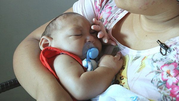 Recife usa centro multidisciplinar para tratar microcefalia