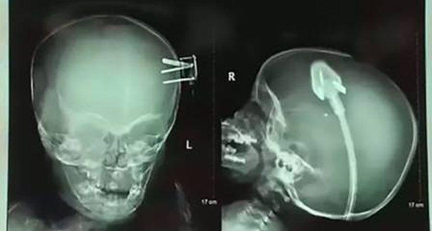 Criança tem plugue enfiado na cabeça após acidente
