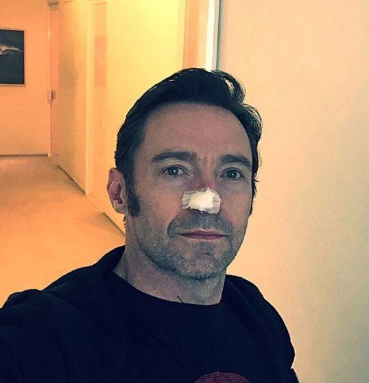 Hugh Jackman está em tratamento para novo câncer de pele