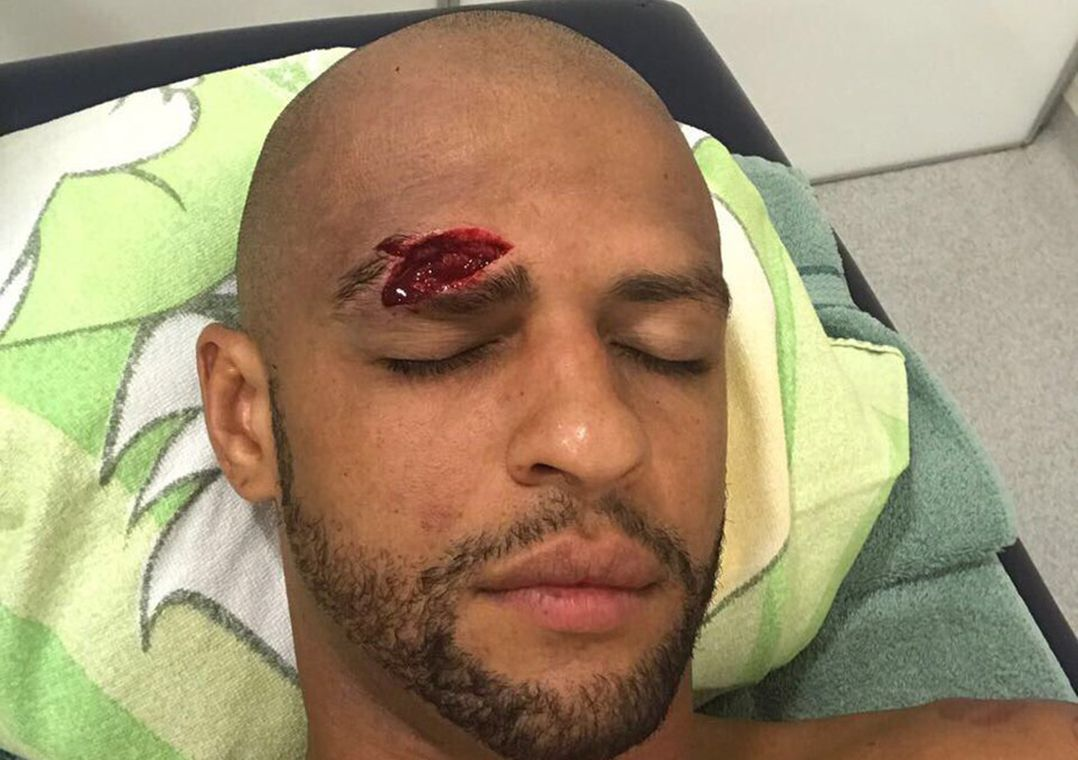 Felipe Melo sofre corte profundo após choque com Mina