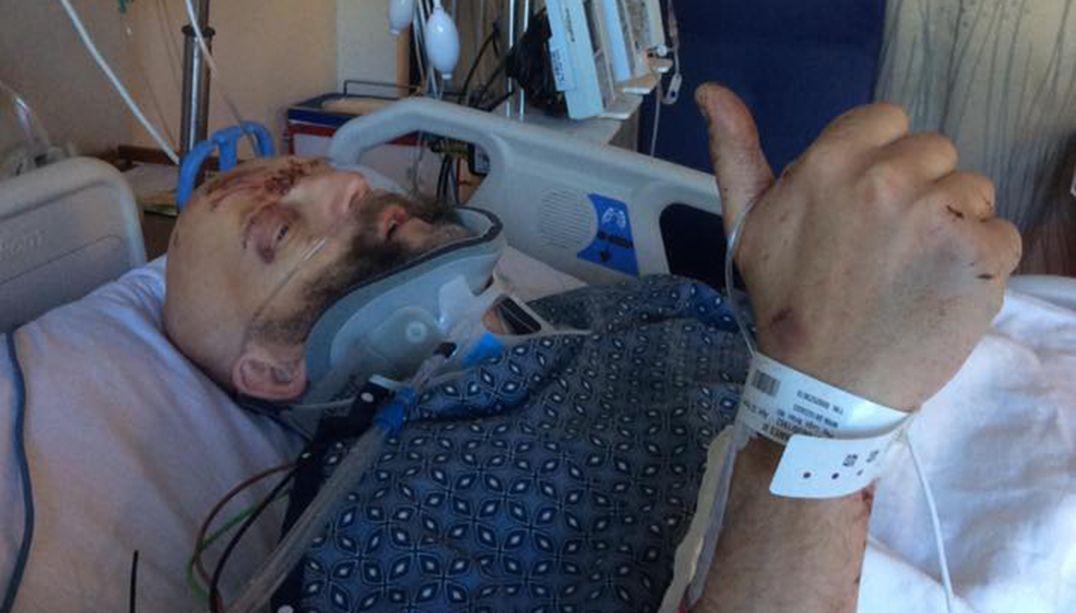 Ator de Harry Potter sofre grave acidente de carro e quebra pescoço