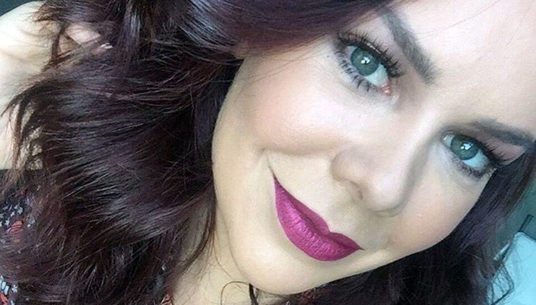 Fernanda Souza é adepta de novo tratamento para afinar o rosto