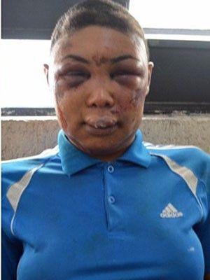 Justiça de SP absolve e manda soltar travesti agredida por policiais