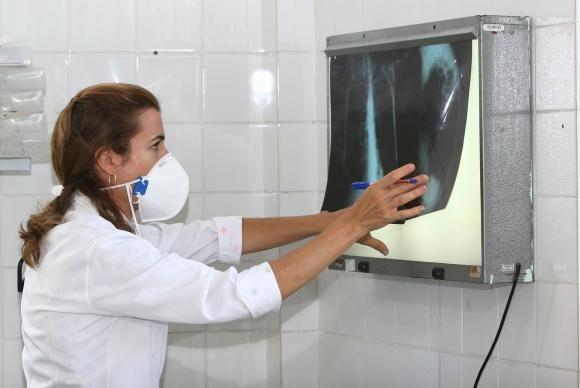 Brasil se aproxima de padrão positivo de combate à tuberculose