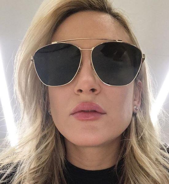 Claudia Leitte rebate críticas sobre preenchimento labial