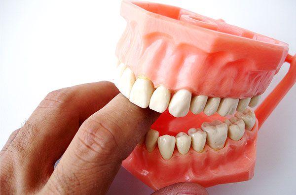 Especialista mostra prótese dentrária / Foto: stock.xchng