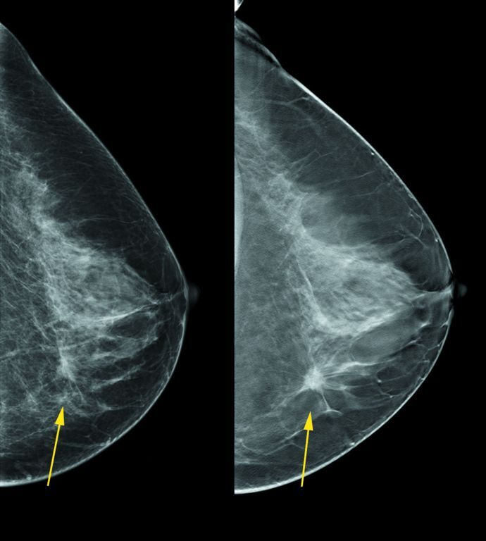 mqsa breast tomosynthesis Mqsa facility certification extension requirements for digital breast tomosynthesis (dbt) system.