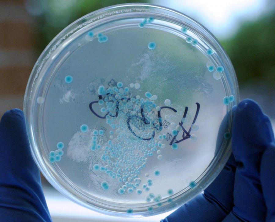 E.coli é um exemplo de bactéria resistente / Caroline Seidel/ AFP