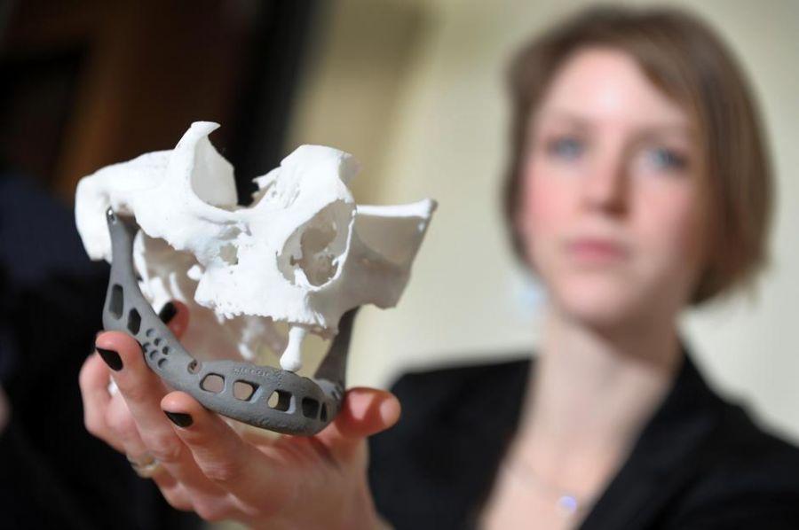 Mandíbula artificial ajudou holandesa a voltar a falar / Yorick Jansens/AFP